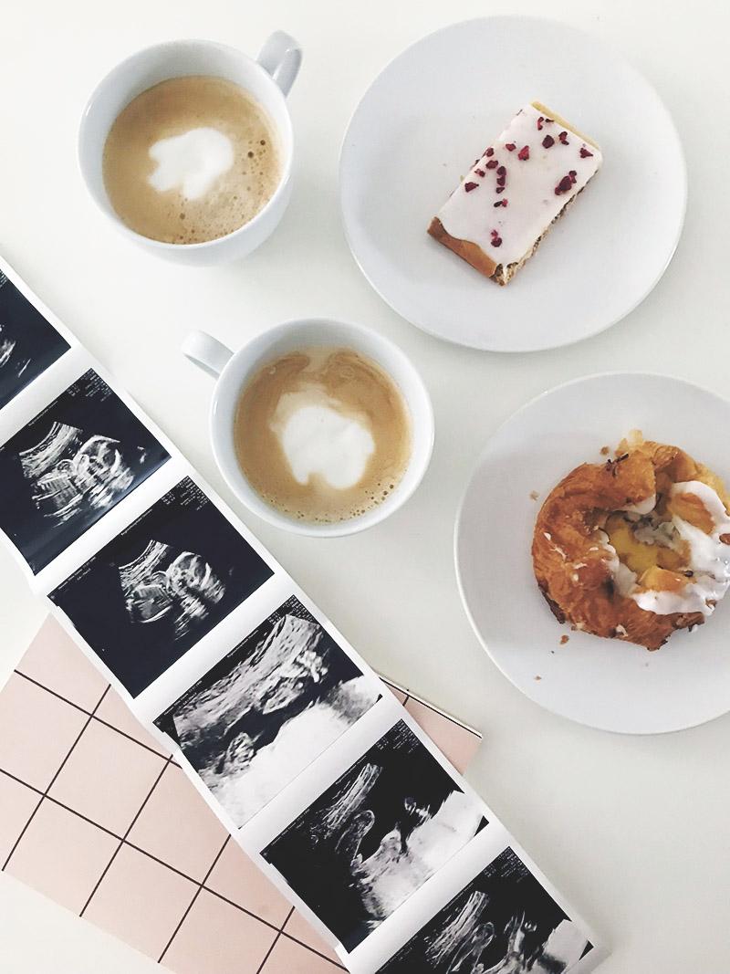 Graviditetsdagbog <strong>uge for uge</strong> fra uge 9 til fødslen 15